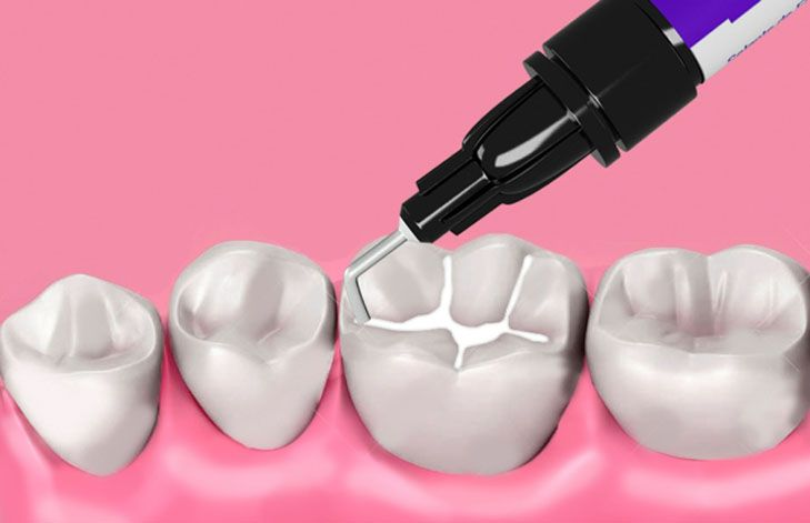 Sellantes dentales