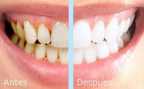 Blanqueamiento dental antes y despues