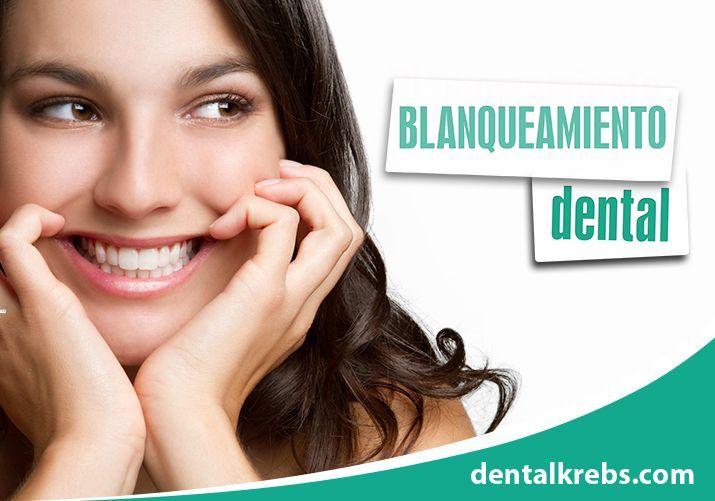 Blanqueamiento Dental en Lima
