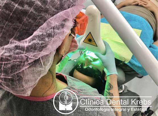 Blanqueamiento dental laser