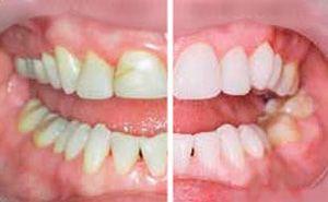bonding dental