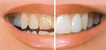 Carilla Dentales porcelana