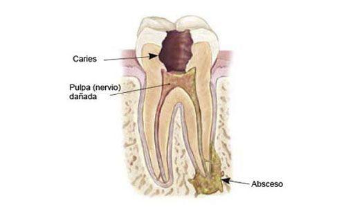 Por que Endodoncia