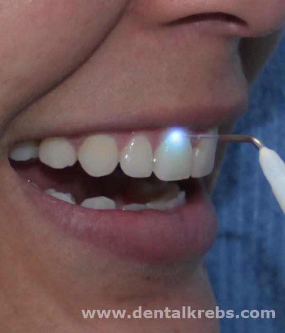Dentista Laser