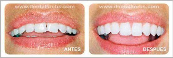 Alargamiento de dientes