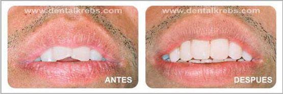 Corregir poscicion de dientes