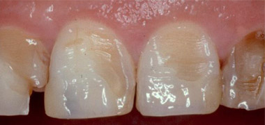 erosion dental