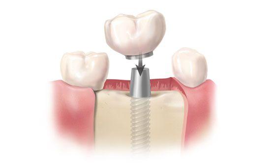 Dientes sobre implantes