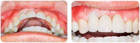 coronas sobre implantes dentales