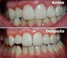 profilaxis sarro dental