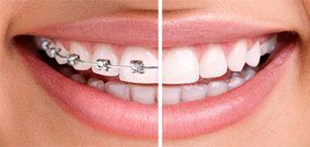 Ortodoncia en lima
