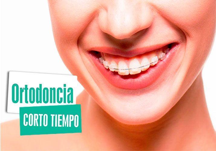 Ortodoncia en San Isidro