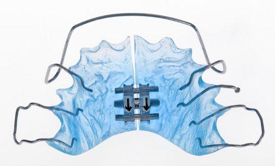 Placa de Ortodoncia