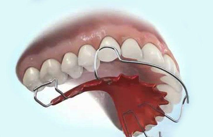 Ortodoncia Removible