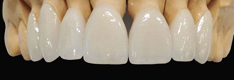 Corona dental porcelana clinica dental krebs lima per for Marcas de vajillas de porcelana