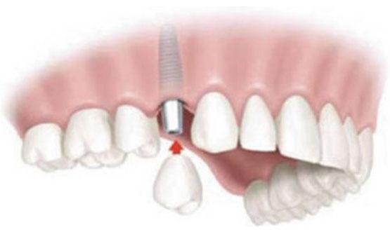 Protesis fija Implantes