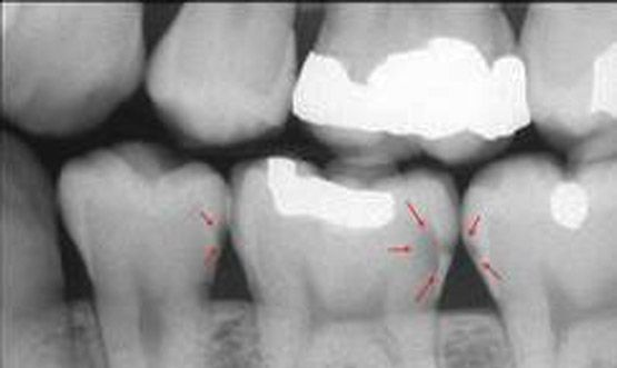 Radiografia Bite-Wing