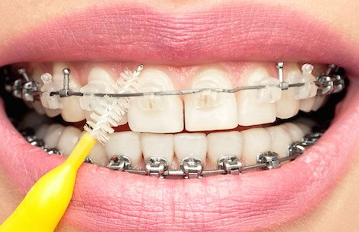 Tips para pacientes con brackets