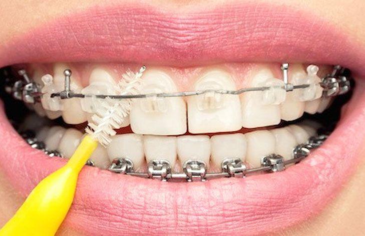 Tips para pacientes con brackets
