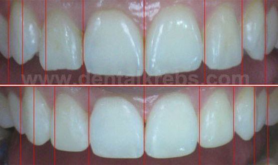 Simetria Dental