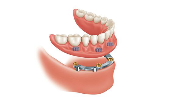 Sobre Dentadura Implantes