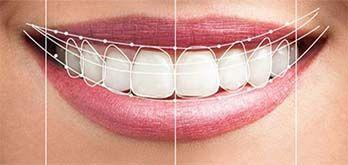 Diseño de Sonrisas dientes
